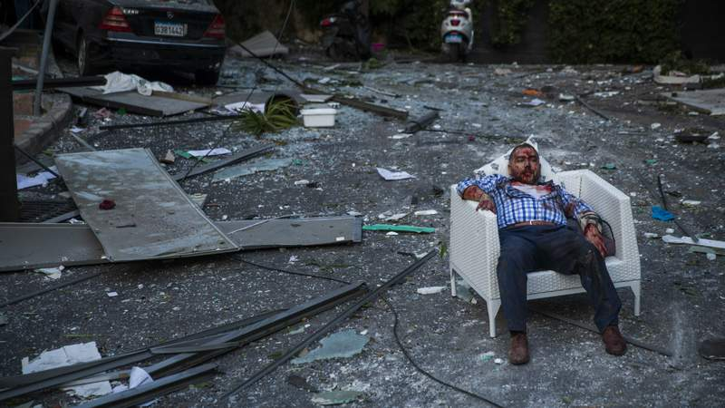 An injured man rests in a chair after a large explosion on August 4, 2020 in Beirut, Lebanon. Photo by Daniel Carde