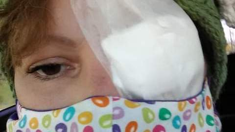 One of our readers, Kelly, following eye surgery. She experienced chemo eye damage. (Photo from April 2020).