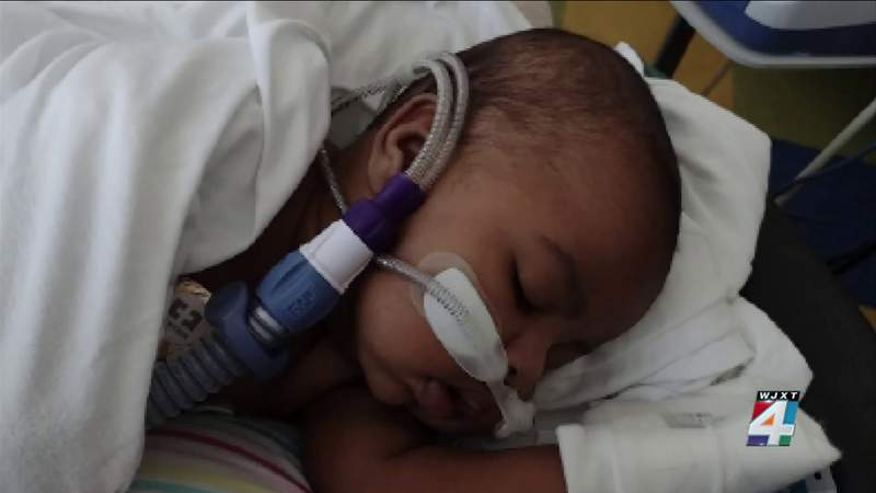 More children being hospitalized with respiratory virus, Jacksonville doctor says