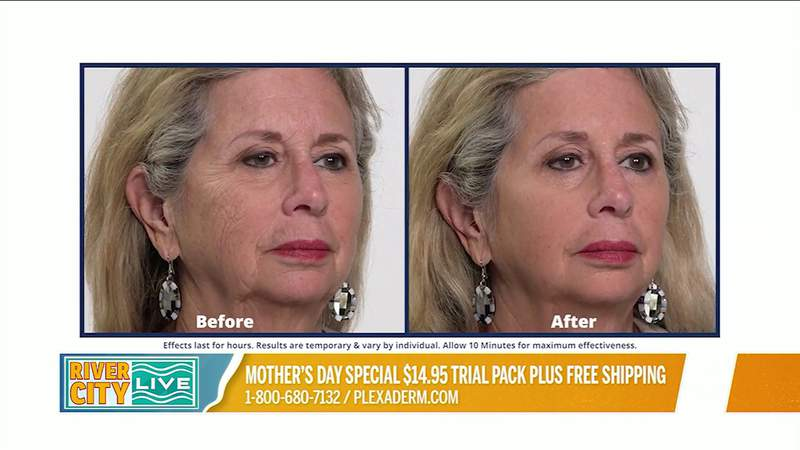 Mother's Day Special with Plexaderm   River City Live