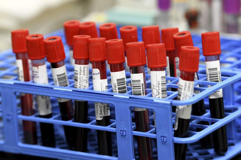 Blood samples from volunteers participating in the National Institutes of Health-funded Moderna COVID-19 vaccine third phase clinical trail wait to be processed in a lab at the University of Miami Miller School of Medicine in Miami, Fla., Wednesday, Sept. 2, 2020 in Miami. (AP Photo/Taimy Alvarez)